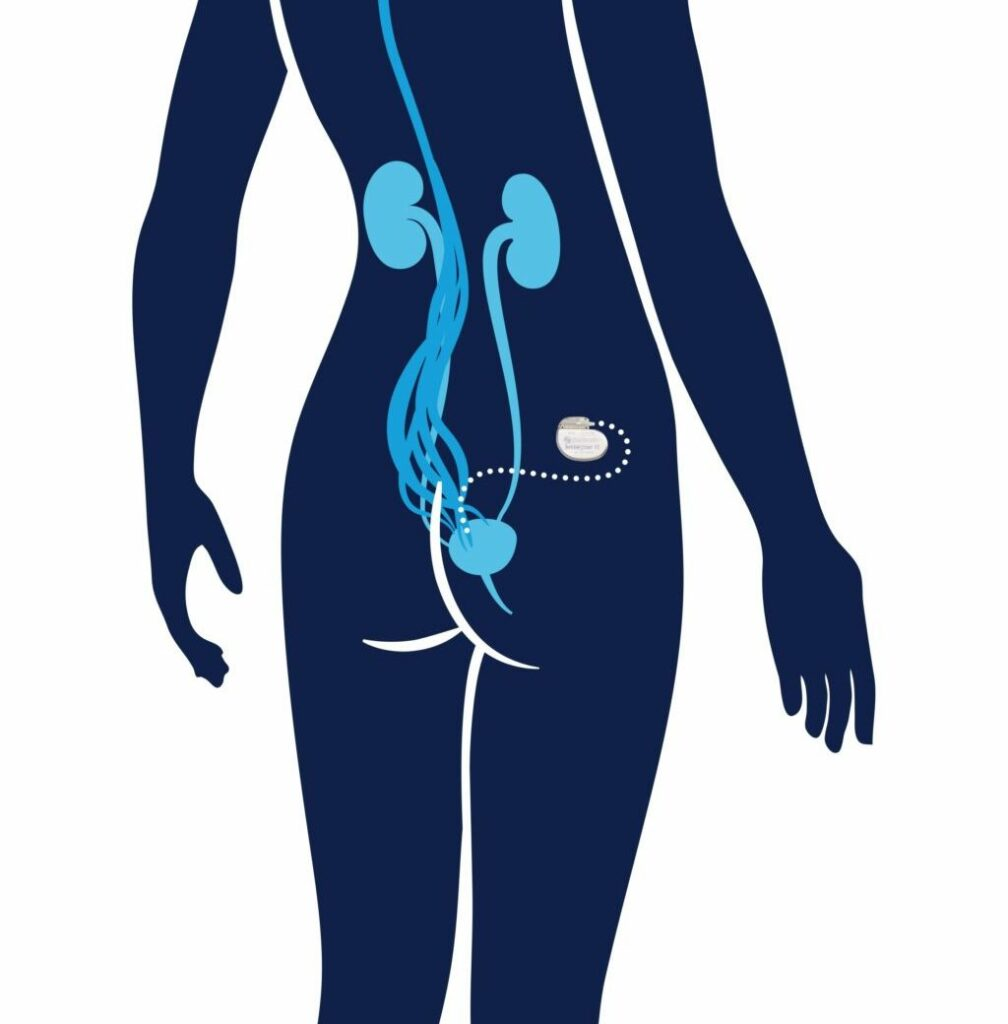 sacral neurostimulation